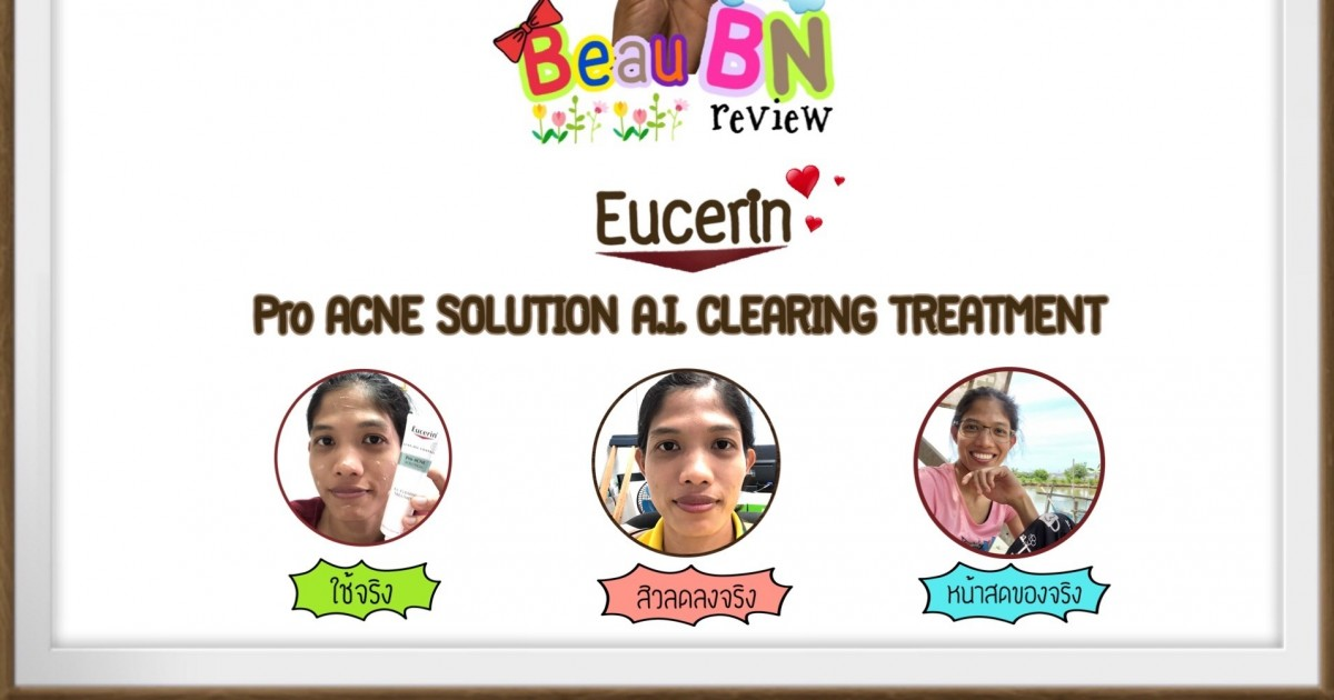 Eucerin Pro ACNE SOLUTION A.I. CLEARING TREATMENT ตัวช่วยจัดการสิวบนใบหน้า