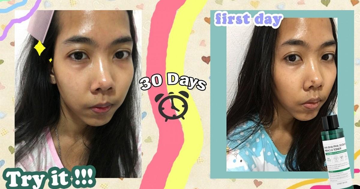 30 Days miracle หน้าใสไม่ใส สิวจะขึ้นหรือไม่ขึ้น มาพิสูจน์พร้อมกัน !!!