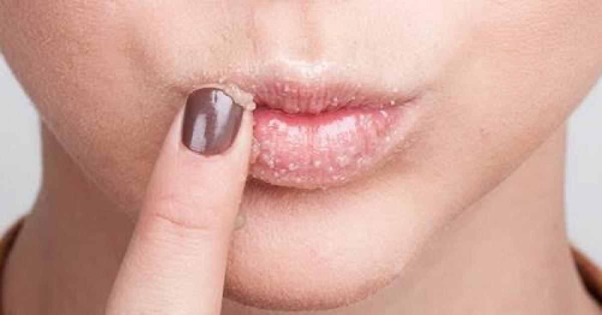 บำรุงริมฝีปาก ก่อนทา Lipstick แต่ปากก็ยังลอก